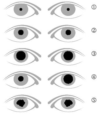 unterschiedliche große pupillen